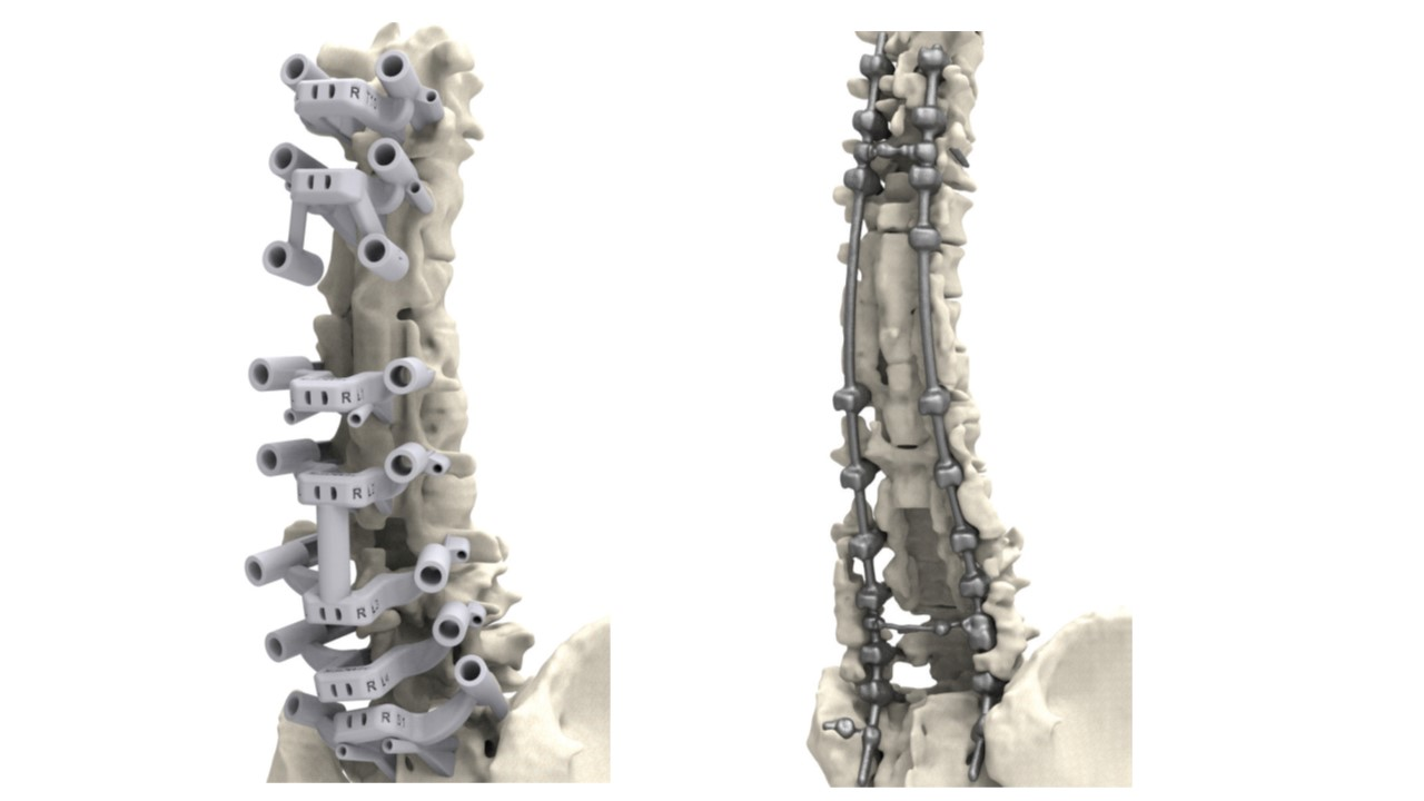 3d-spine-and-guide-model
